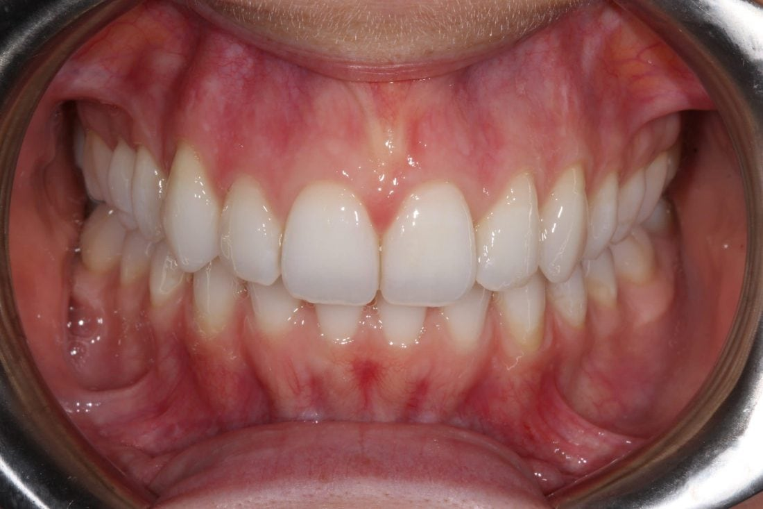 Invisalign after with Claydon Dental Milton Keynes
