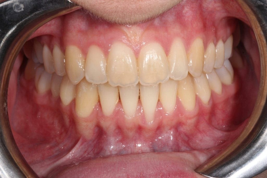 Lois Invisalign After
