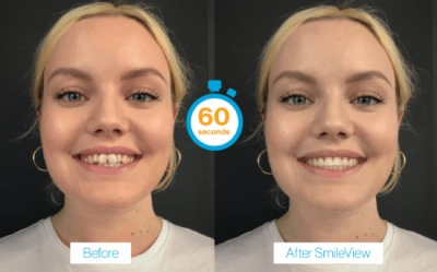 Invialign before and after with Smileview