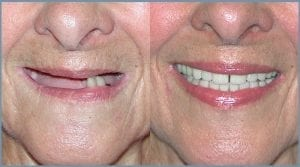 Janice Before and After Dental Implants