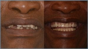Leonard Before and After Dental Implants