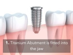 How to Take Proper Care of Your Dental Implants - Our Guide 1