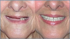 Guided Dental Implants - Milton Keynes 2
