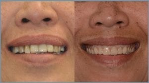 Guided Dental Implants - Milton Keynes 4