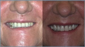 Guided Dental Implants - Milton Keynes 5