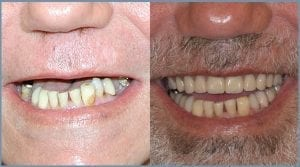 Guided Dental Implants - Milton Keynes 6