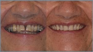 Guided Dental Implants - Milton Keynes 7