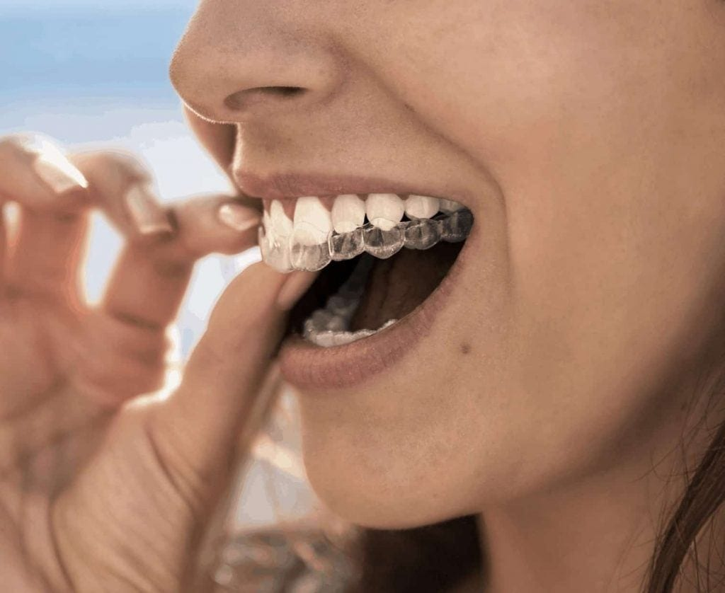 Clear Braces - Invisalign
