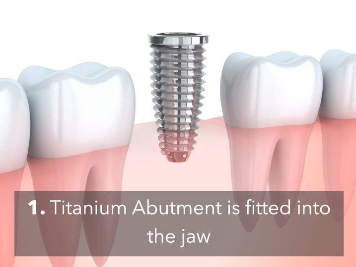Dental Implant Process Video