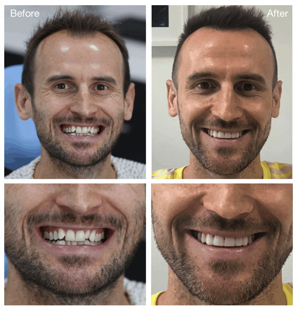 Duncan before and after Invisalign photos