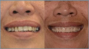 Lily Before and After Dental Implants
