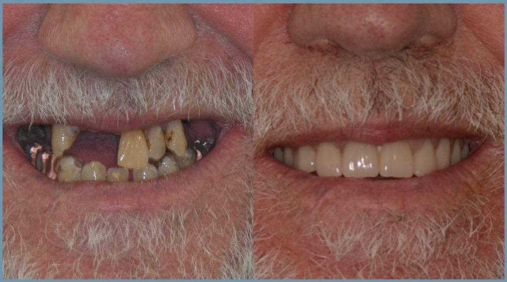 Nick Before and After Dental Implants