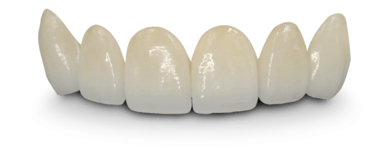 Dental bridge front teeth