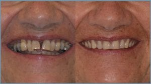 Yvonne Before and After Dental Implants
