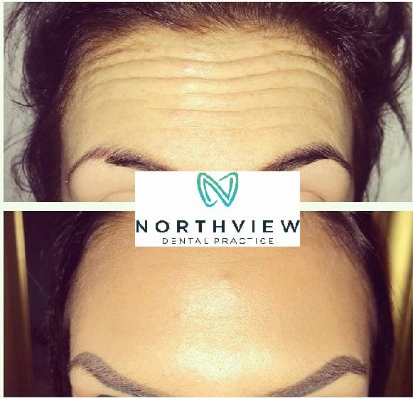 Anti-Wrinkle Injections Caerphilly 1
