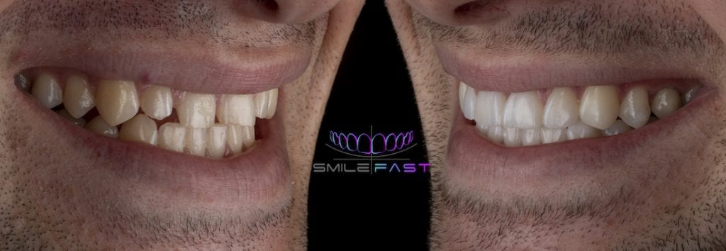 Smilefast before after example