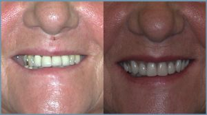 Linda Before and After Dental Implants